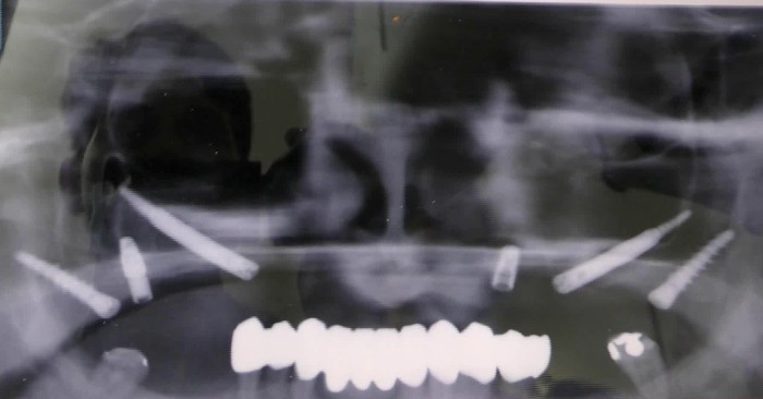 implantologia senza osso caso clinico