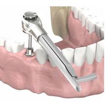 implantologia a carico immediato avvitamento impianto singolo newton