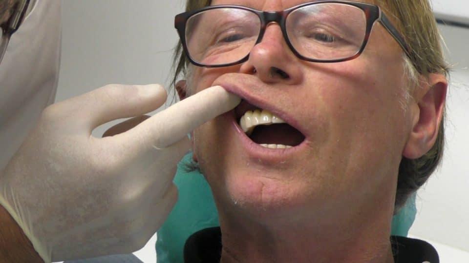 implantologia dentale poco osso